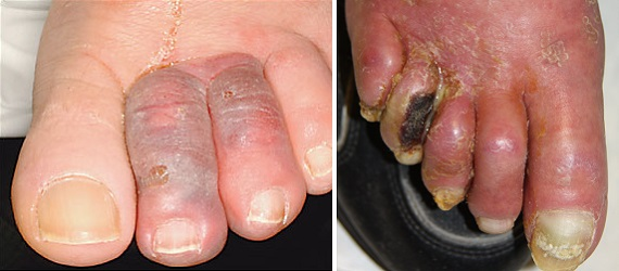 Флегмона пальцев стопы