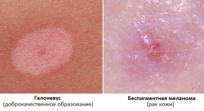 Галоневус и беспигментная меланома