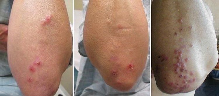 Герпетиформный дерматит на локтях