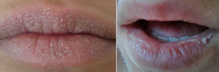 Шелушение губ при кандидозе