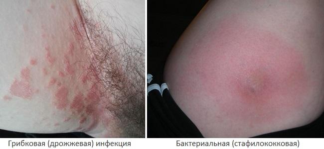Бактериальная и грибковая инфекция на внутренней стороне бедра
