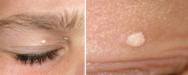 Кальциноз кожи на лице