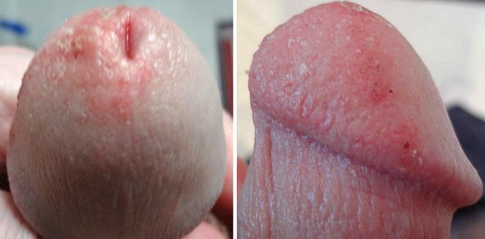 Шелушение головки на половом члене при кандидозе