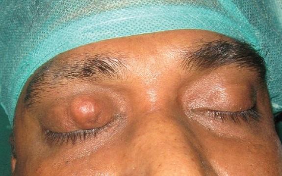 Карцинома в области глаза