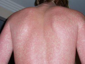 Красная мраморная сыпь на спине мужчины