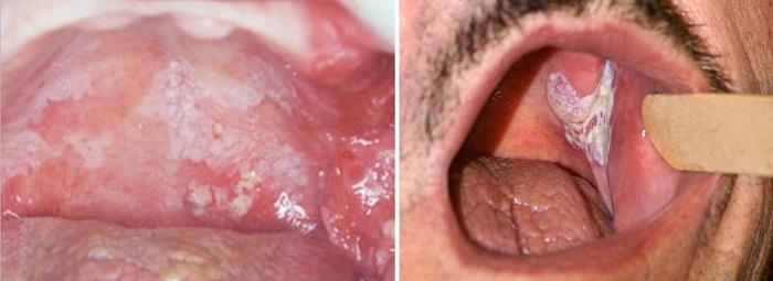 Лейкоплатия в горле и рак