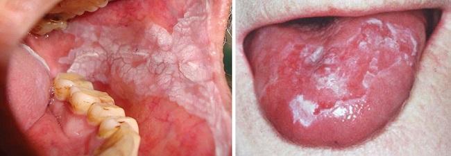 Лейкоплакия во рту