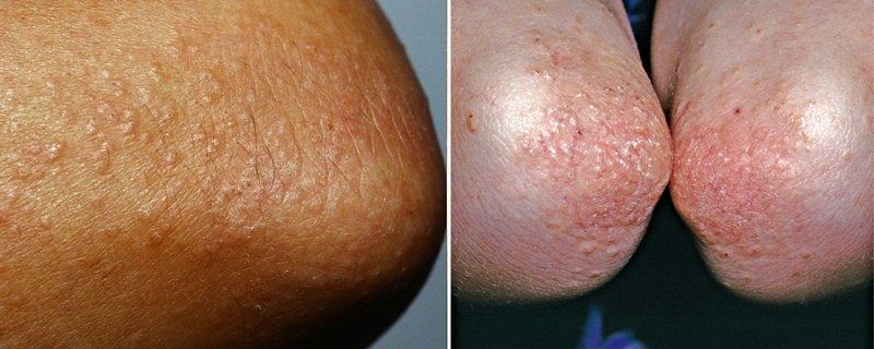 Фрикционный лихеноидный дерматит на локтях
