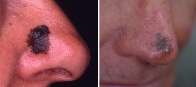Меланома на носу