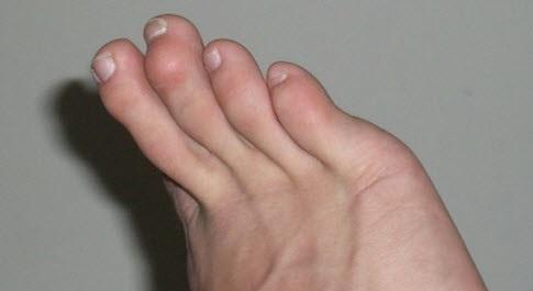 Молоткообразные пальцы ноги