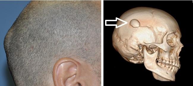 Остеома на голове