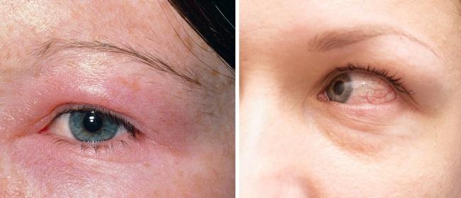 Отек брови при аллергической реакции