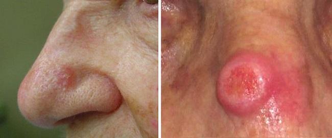 Плоскоклеточная карцинома на носу