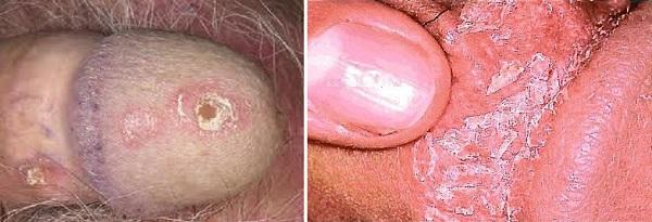 Псориаз на пенисе