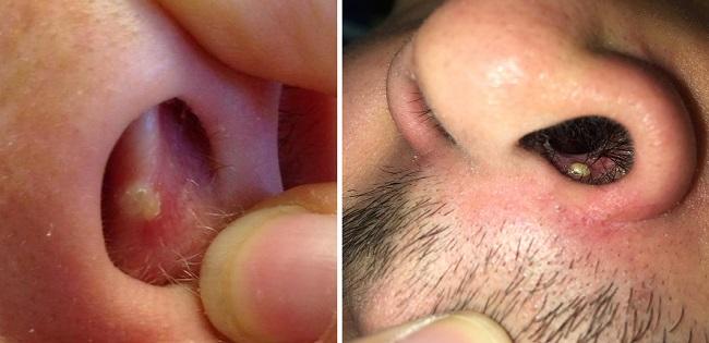 Прыщ и пятно в носу