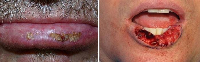 Рак кожи на губе