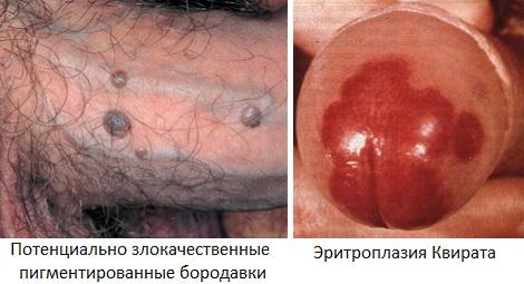 Злокачественные бородавки и эритроплазия Квирата на пенисе