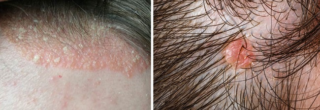 Бугорки на голове при себорейном дерматите