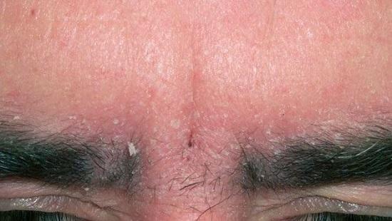 Себорейный дерматит на бровях