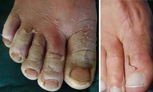 Синдром ошпаренной кожи на пальцах ног