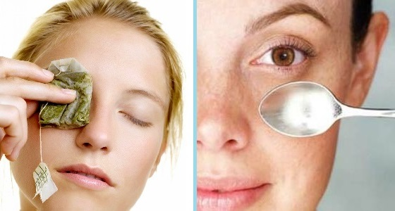 Снятие отека с глаза при помощи ложки и чайного пакетика