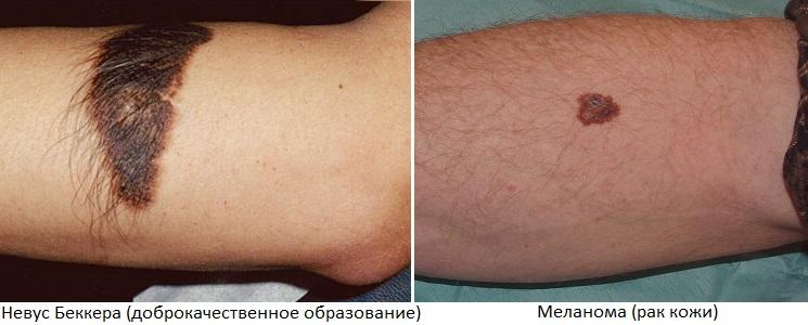 Темная меланома Невус Беккера на руке