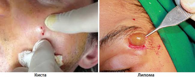 Удаление кисты и липомы на лице
