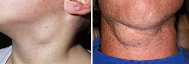 Опухшие шейные лимфатические узлы