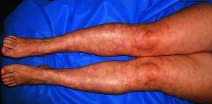 Мраморная кожа на ногах