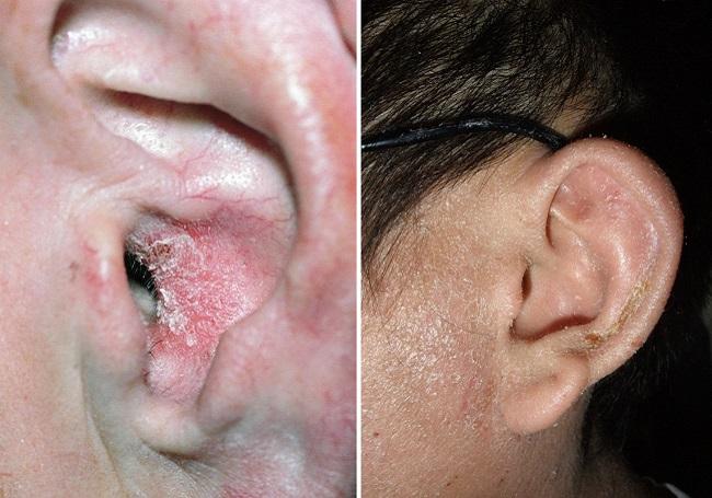 Если за ухом шелушится и трескается кожа 119